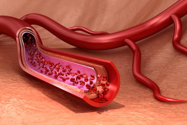 Thrombozytopenie: Thrombozyten (Illustration)